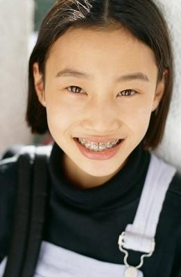 《儿童牙齿不齐会影响健康